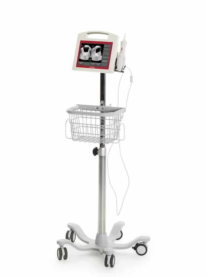 VitaScan PD+ bladder scanner